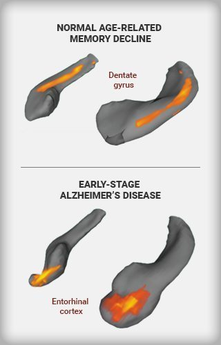 An infographic that shows changes in a specific part of the brain's hippocampus
