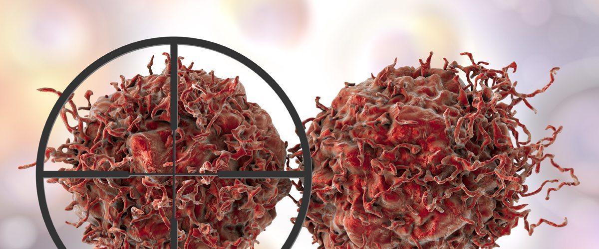 Up-close photo of prostate tumors