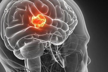 A rendering of a human brain with a glioblastoma tumor