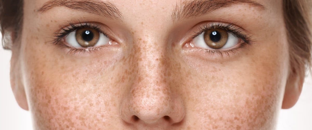 Close up of a woman's freckled face