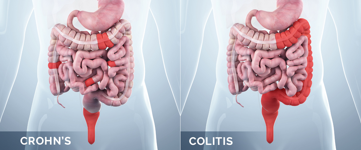 Diagram illustrating the difference between Chron's and colitis