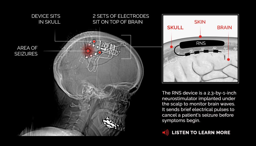 Diagram of responsive neurostimulation device used for treating epileptic seizures.