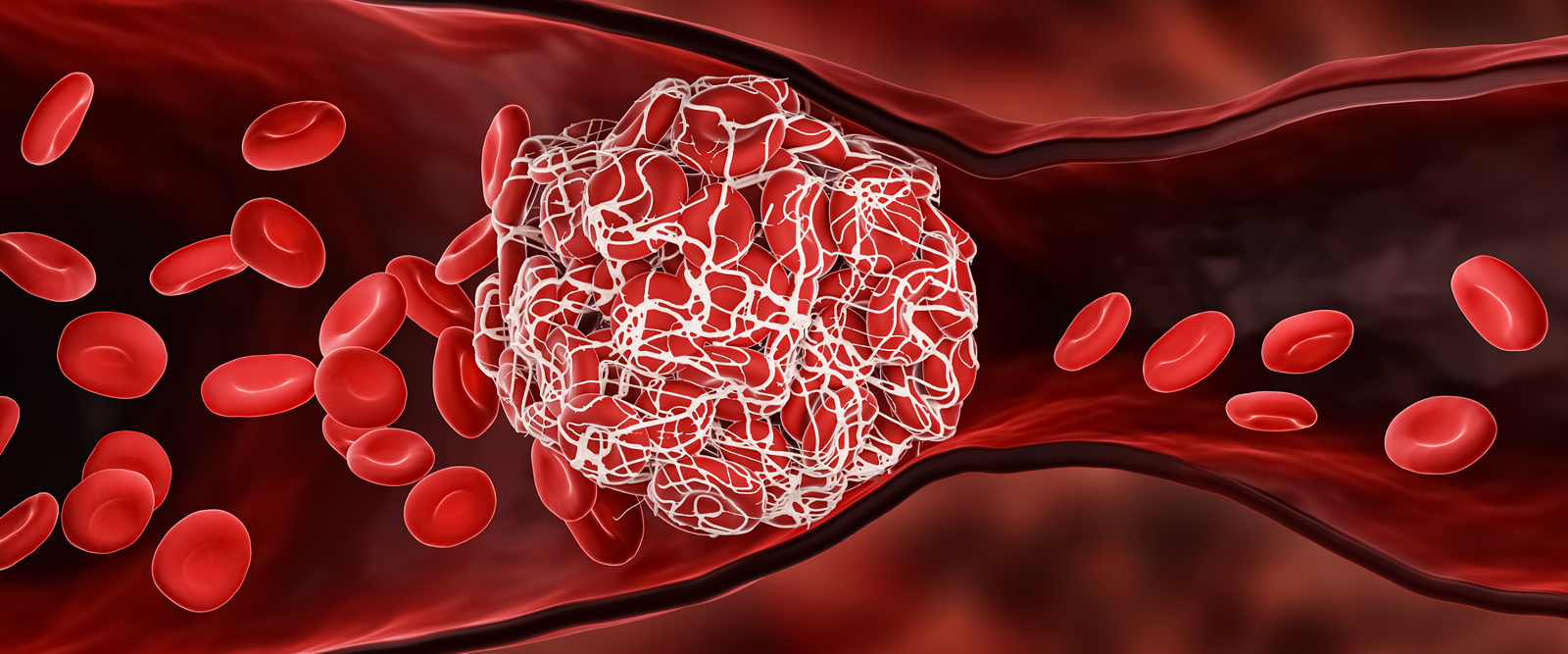 blood clot caused by COVID-19