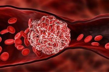 COVID-19 blood clots
